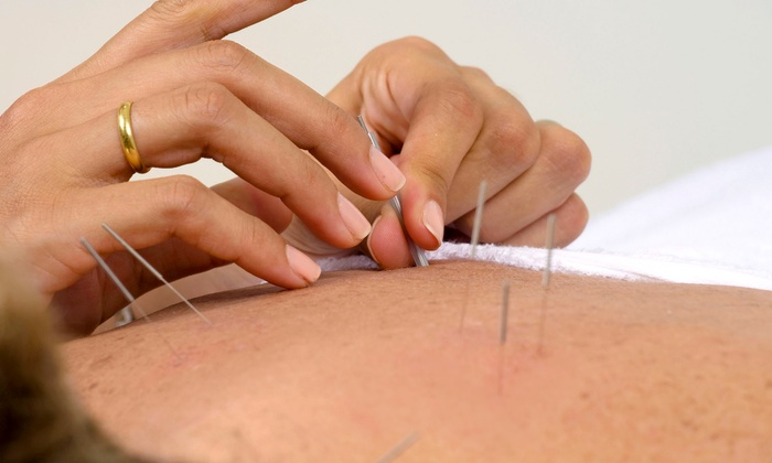back acupuncture needles